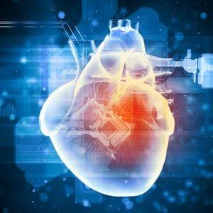 Heart Disease in Cornelius NC