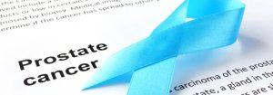 Lake Norman Integrative Wellness For Prostate Cancer Testing